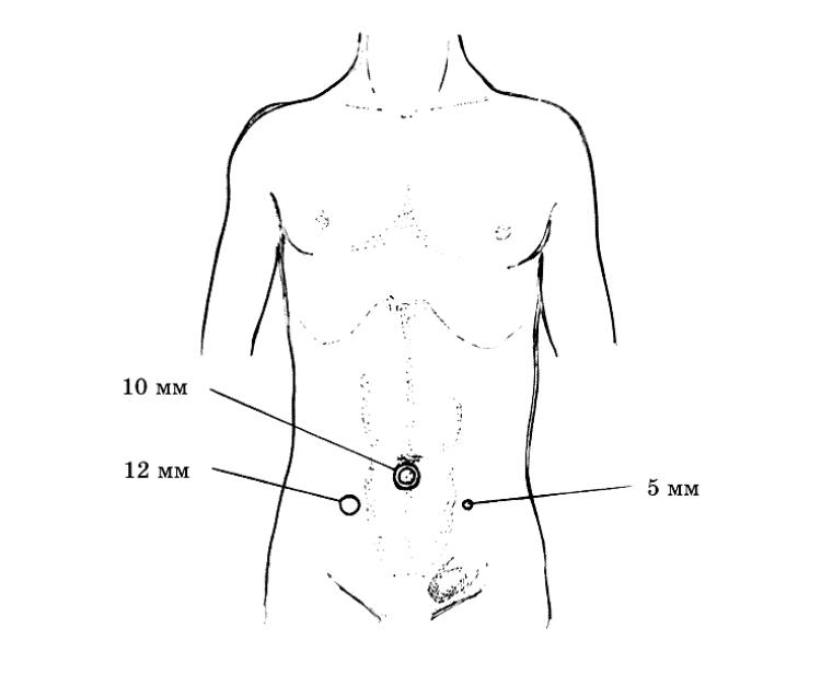 Лапароскопическая герниопластика паховой грыжи видео thumbnail