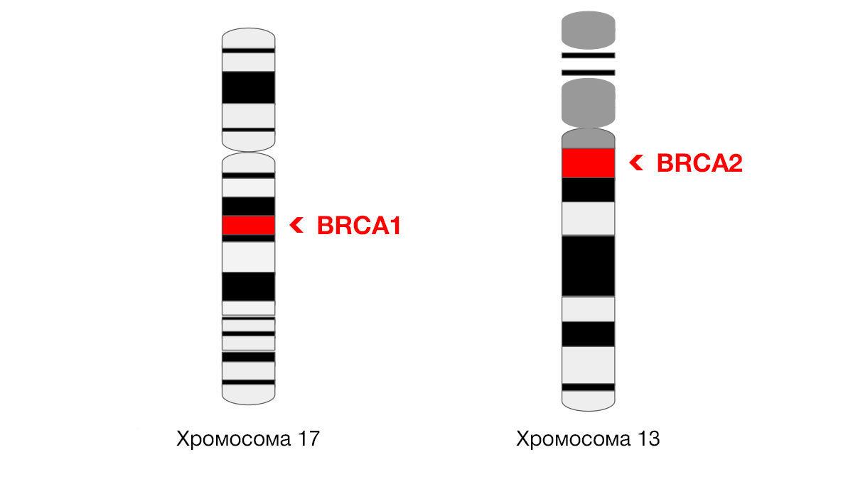 Превентивная медицина против рака молочной железы: на что способна  диагностика мутаций BRCA